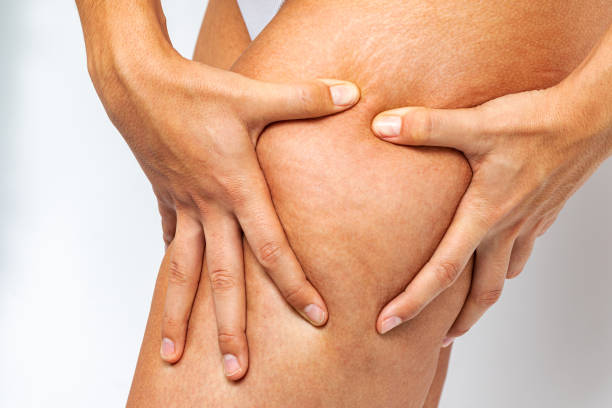 Female hands showing cellulite and stretch marks on thigh. stock photo