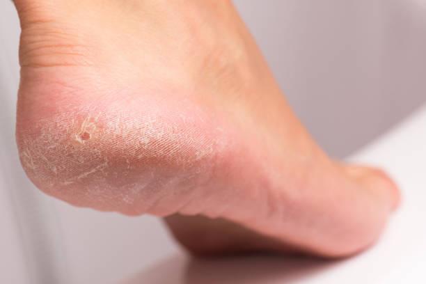female heel with hardened skin. - callo foto e immagini stock