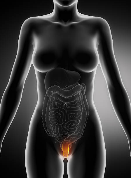 Female hemorrhoid concept stock photo