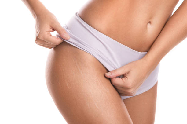 Female hips with a stretch marks Close up of female hips with a stretch marks imperfection stock pictures, royalty-free photos & images
