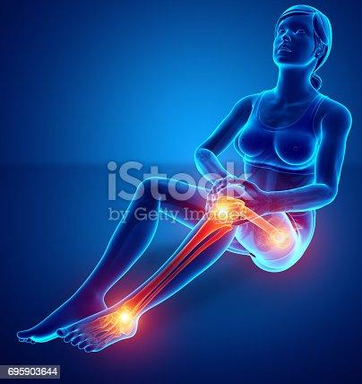 istock Female Leg joint pain 695903644