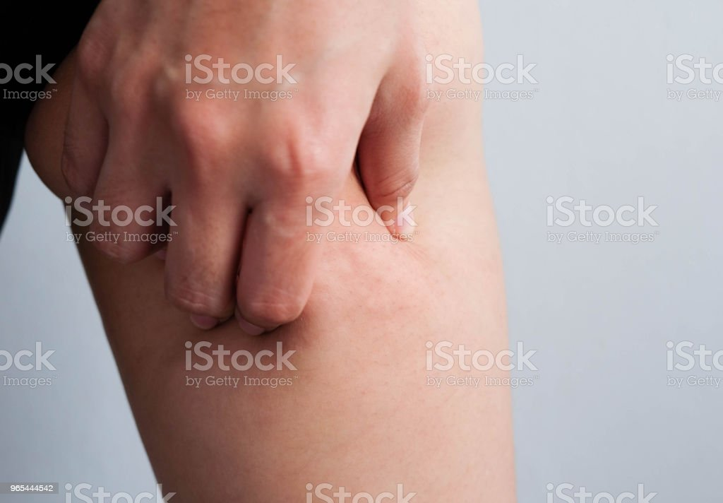 Female legs thighs with cellulite. Skin problem, body care, overweight and dieting concept, diabetic risk factor royalty-free stock photo