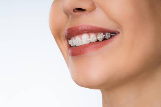 Female Mouth With Metal White Dental Braces stock photo