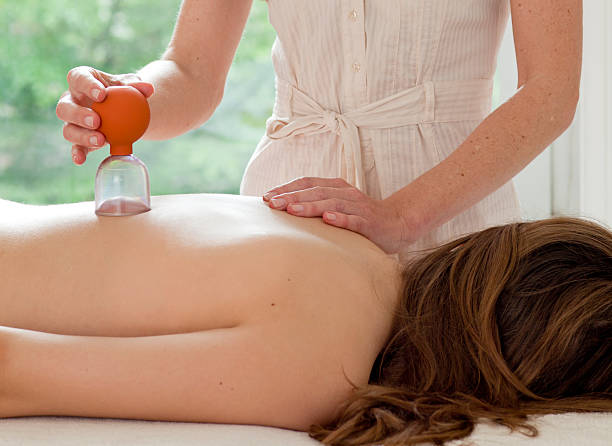 female patient at the alternative practitioner - cupping therapy stock photos and pictures