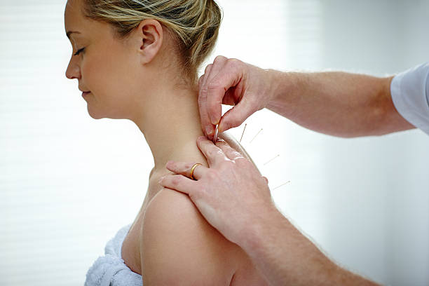 Female patient receiving acupuncture treatment stock photo
