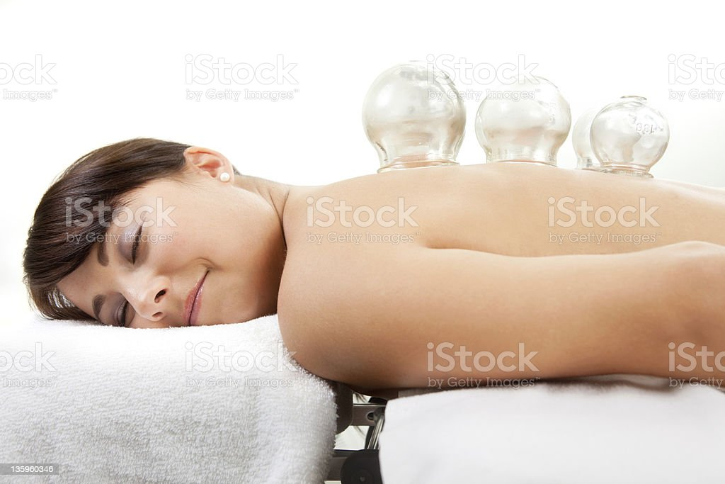 Female Receiving Acupuncture Cupping Treatment stock photo