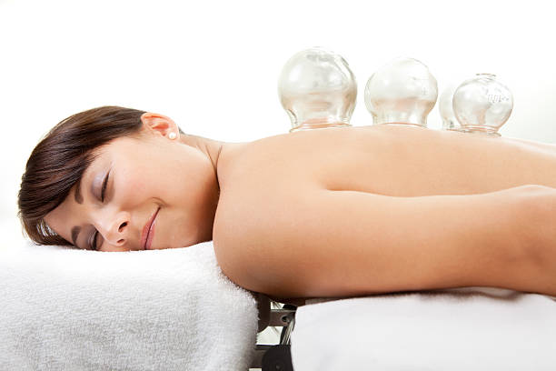 female receiving acupuncture cupping treatment - cupping therapy stock photos and pictures