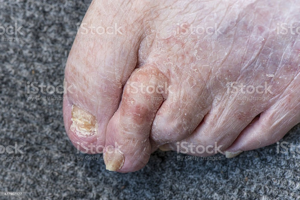 Female senior foot problems stock photo