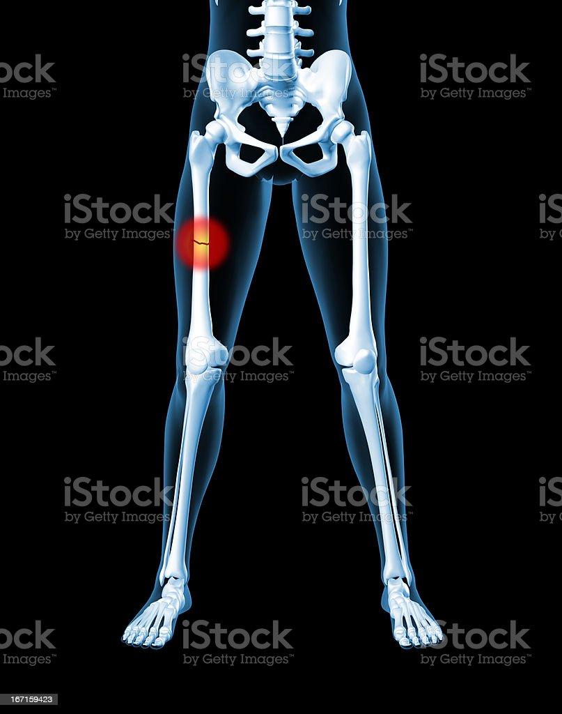female skeleton with broken leg bone - stock image