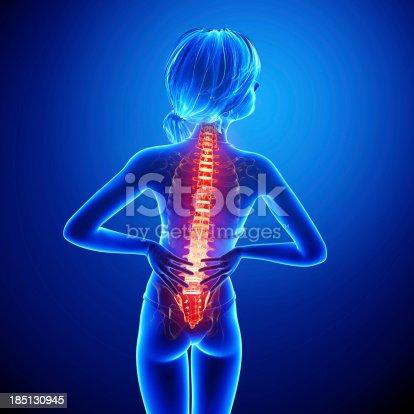 135895161istockphoto Female spine pain 185130945