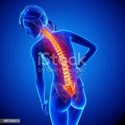 135895161istockphoto Female spine pain 185293524
