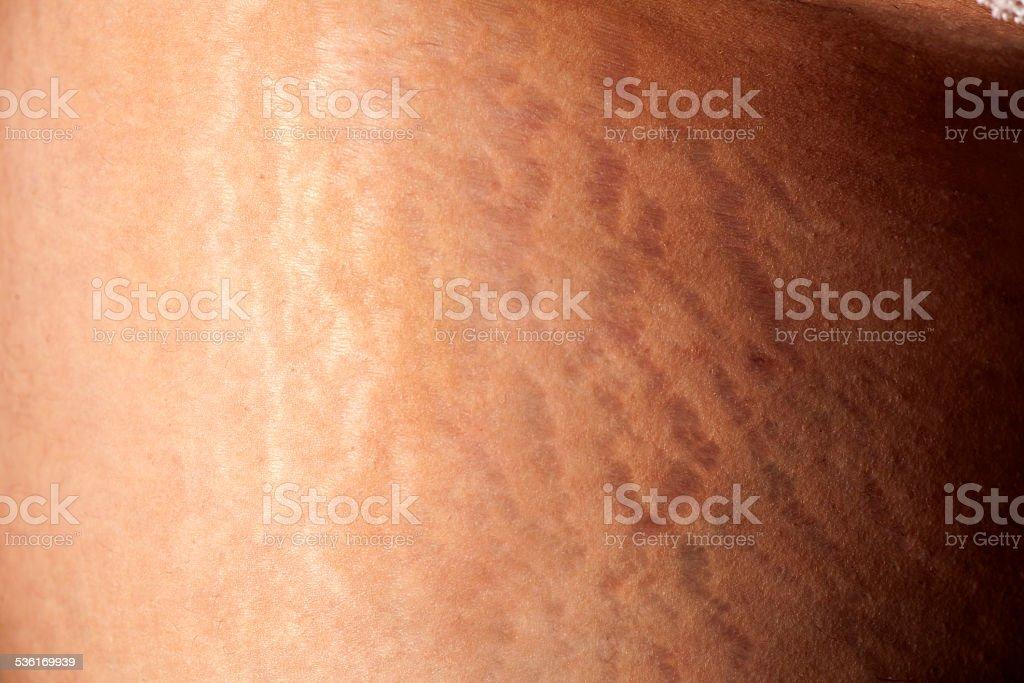 Female stretch marks stock photo