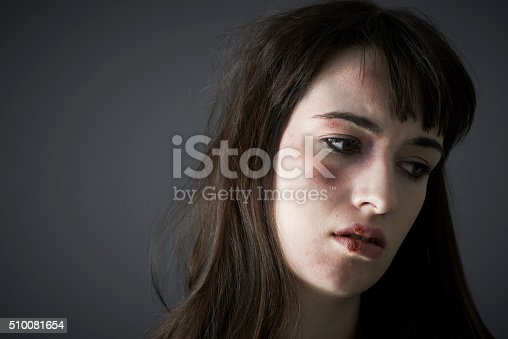 Female Victim Of Domestic Abuse