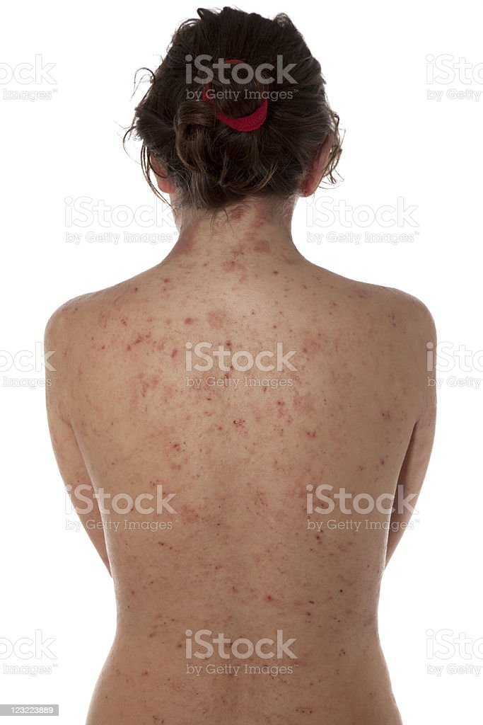 A female with atopic dermatitis on her bare back royalty-free stock photo