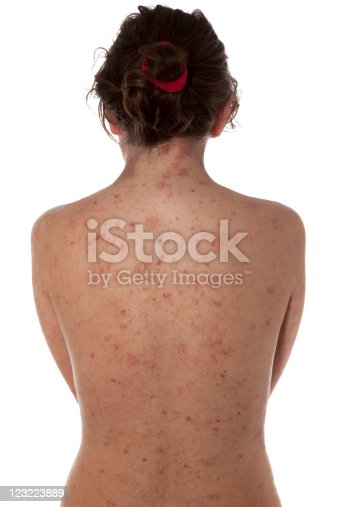 Young girl with Atopic dermatitis,type of eczema,is an inflammatory, chronically relapsing, non-contagious and pruritic skin disease. It has been given names like