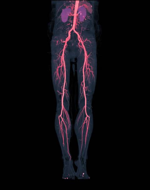 CTA Oberschenkelarterie läuft von 3D MIP-Bild (Rot) der Oberschenkelarterie mit Niere für Patienten, die mit akuten oder chronisch peripheren Arterienkrankheit präsentiert. – Foto