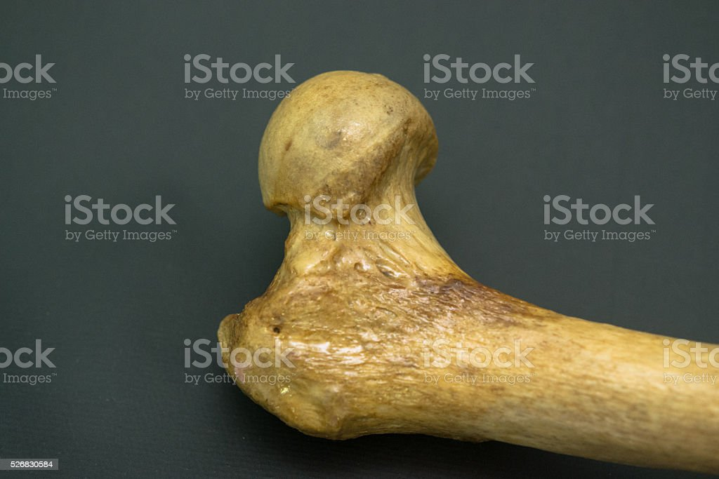 Femoral Head - Detail stock photo