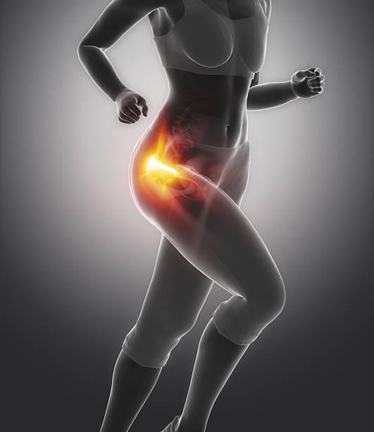 Femural head pain - hip injury concept stock photo