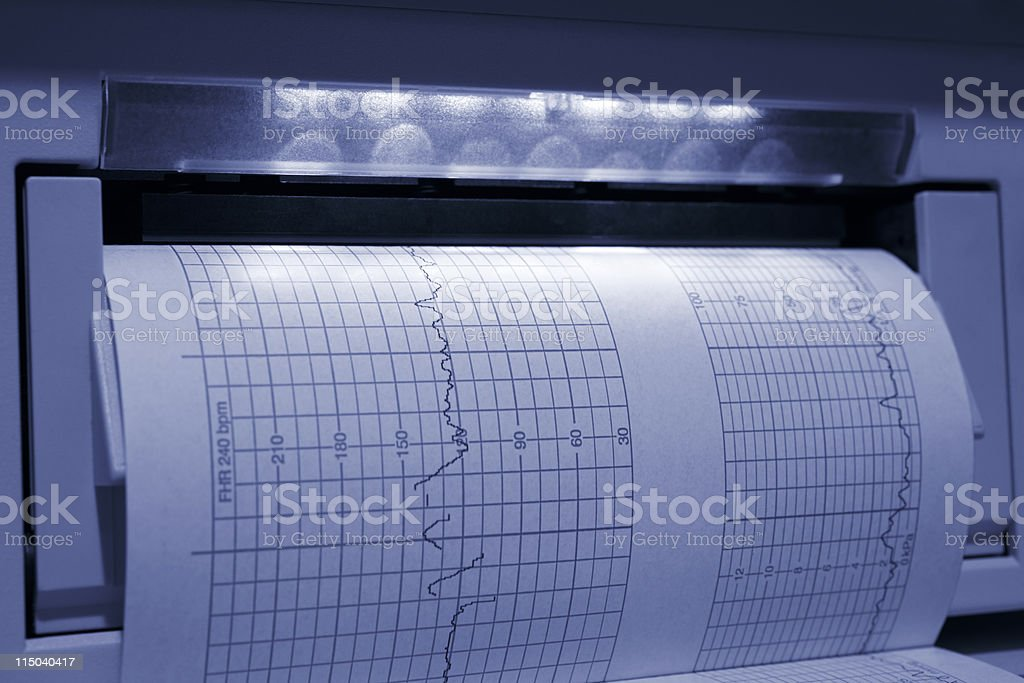 Fetal Baby Heart Monitor EKG Printout with Blue Tint royalty-free stock photo