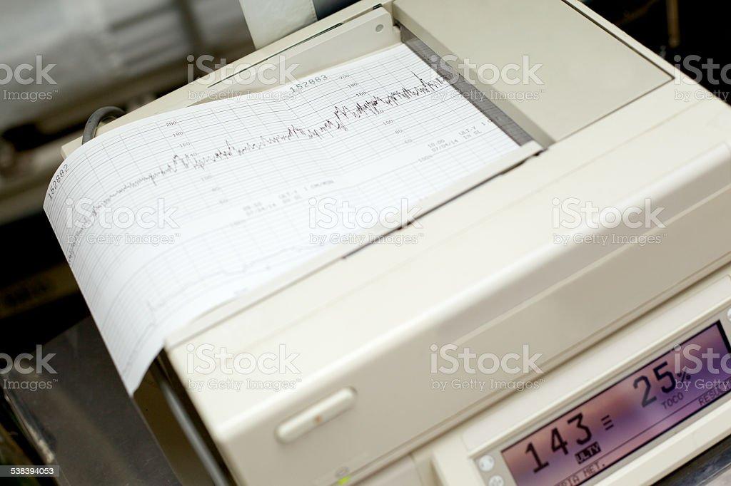 Fetal Doppler stock photo