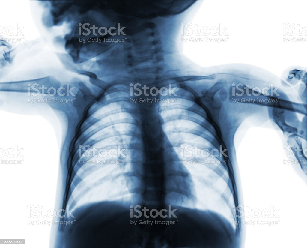 Film chest x-ray of child . isolated background stock photo