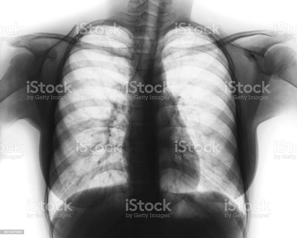 Film chest x-ray of normal woman chest stock photo