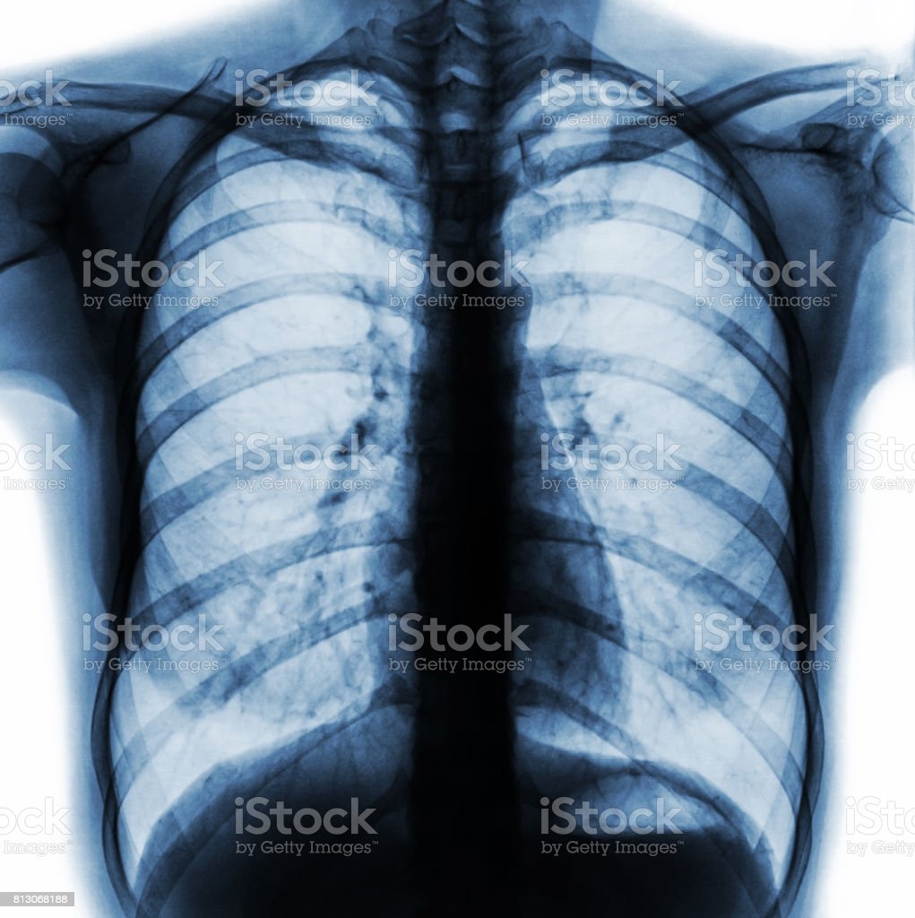 Film chest x-ray PA upright show normal human chest . stock photo