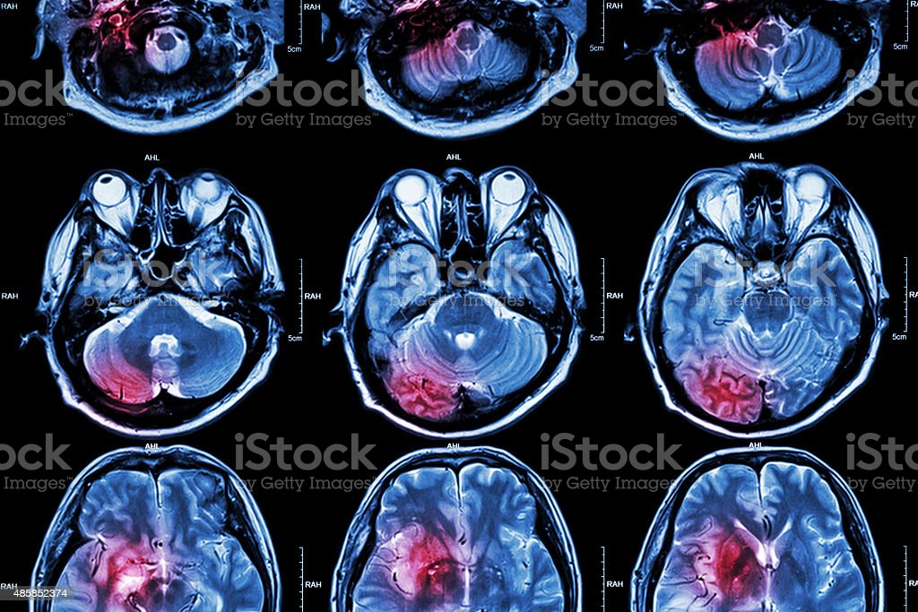 Film MRI ( Magnetic resonance imaging ) of brain stock photo
