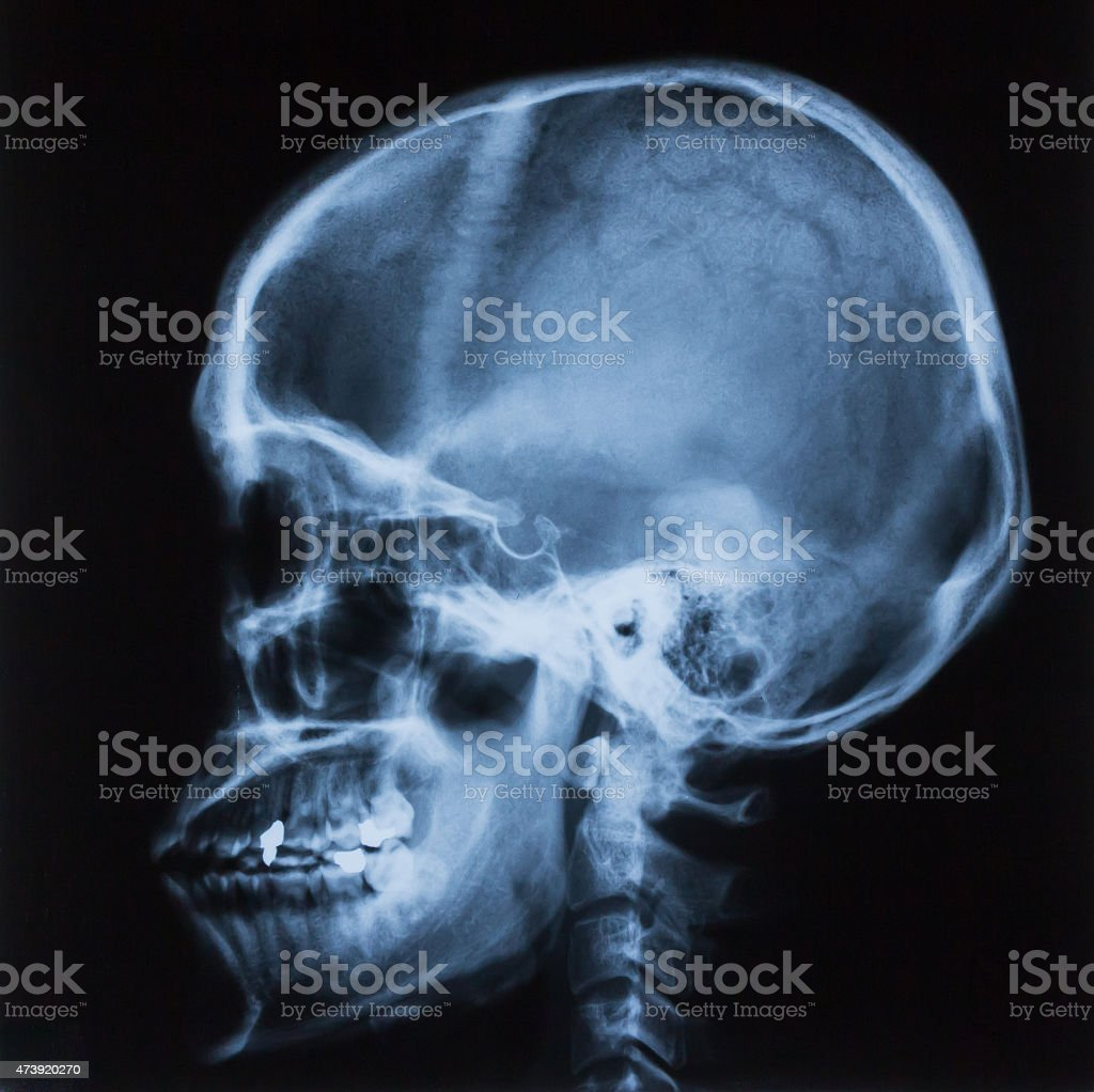 Xray Film Of Lateral Skull Bone Stock Photo More Pictures Of 2015
