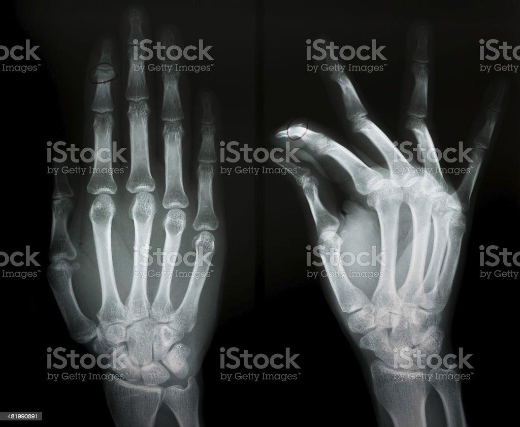 Xray Film Of Second Phalangeal Bone Fracture Stock Photo & More ...