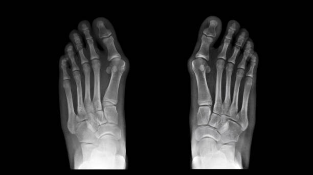 Film X ray foot radiograph show both Hallux valgus deformity or Bunion disease. The patient has big toe pain symptom. This cause shoe wearing and cosmetic problem. Medical imaging concept stock photo