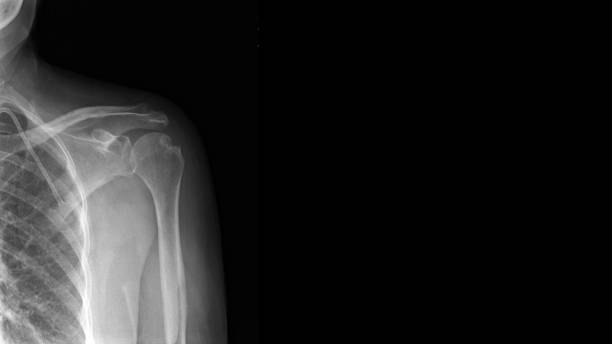 Film X ray shoulder show Hill-Sachs lesion. Hill Sachs lesion is posterolateral humeral head compression fracture from impaction on glenoid rim after shoulder is dislocated. Medical imaging concept stock photo