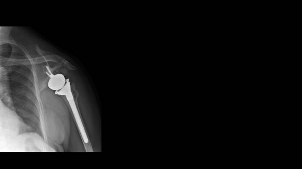 Film X ray shoulder show shoulder joint prosthesis. The patient has rotator cuff syndrome treated by shoulder replacement surgery (reverse shoulder arthroplasty). Medical technology concept. stock photo