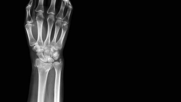 film x ray wrist radiograph show distal forearm bone broken ( distal end radius fracture). the patient has wrist pain, swelling and deformity. medical imaging for investigation and technology concept - disfigure stock pictures, royalty-free photos & images