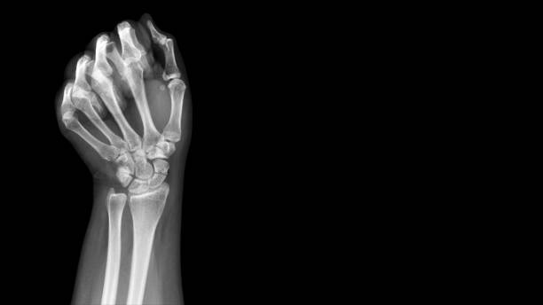 Film X ray wrist radiograph show show carpal bone broken (scaphoid fracture). The patient has wrist pain, swelling and deformity. Medical imaging and orthopedic technology concept stock photo