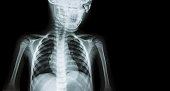 Film x-ray body of child