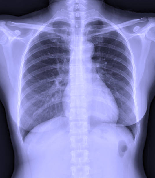 Film x-ray chest PA upright with normal lungs. Film x-ray chest PA upright with normal lungs. intercostal space stock pictures, royalty-free photos & images
