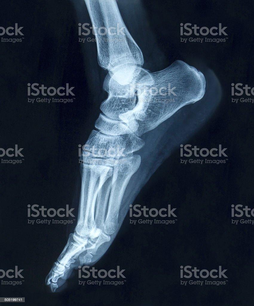 Film x-ray foot stock photo