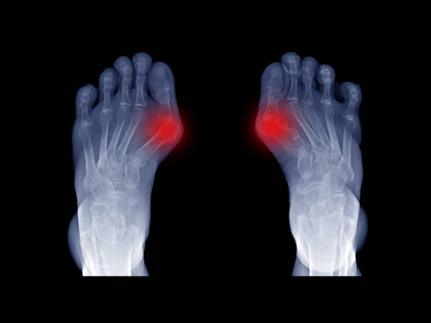 Film x-ray foot radiograph show both Hallux valgus deformity or Bunion disease. The patient has big toe pain symptom from irritate and inflammation. This cause shoe wearing and cosmetic problem. stock photo