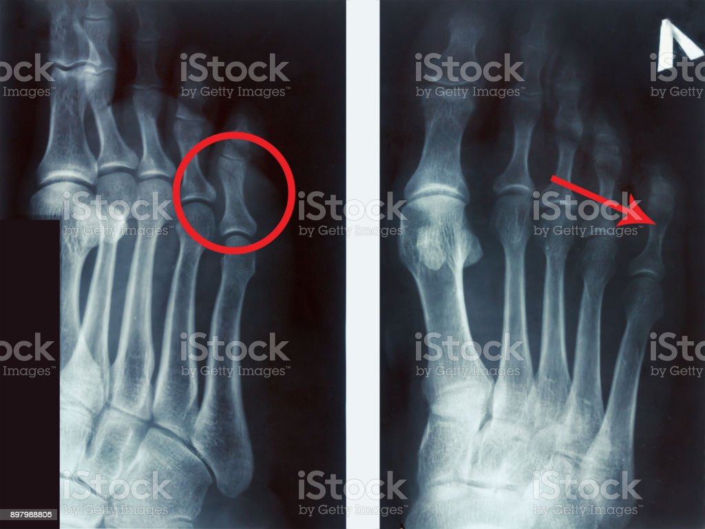 film x-ray fracture proximal phalange at fifth toe stock photo