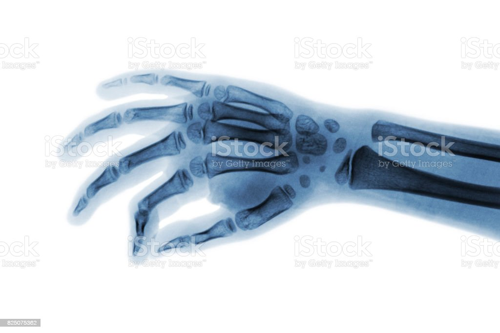 Film x-ray hand of child . Oblique view stock photo