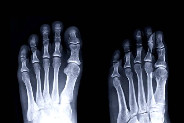 Film-Röntgenbild linker Zeh Vorderund Schrägansicht für die Diagnose Gicht Arthritis. – Foto