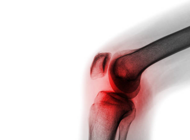 Film x-ray knee joint with arthritis ( Gout , Rheumatoid arthritis , Septic arthritis , Osteoarthritis knee ) stock photo