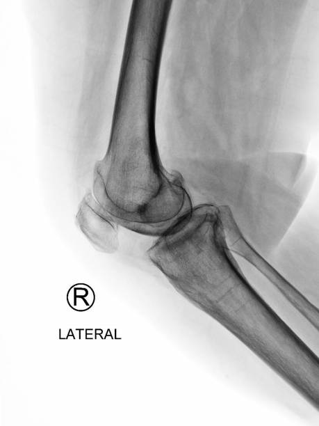 Film X-ray knee radiograph show inflammatory arthritis disease (IA) from rheumatoid disorder (RA) or rheumatism. The patient has knee pain, joint stiffness and walking problem. medical imaging concept stock photo