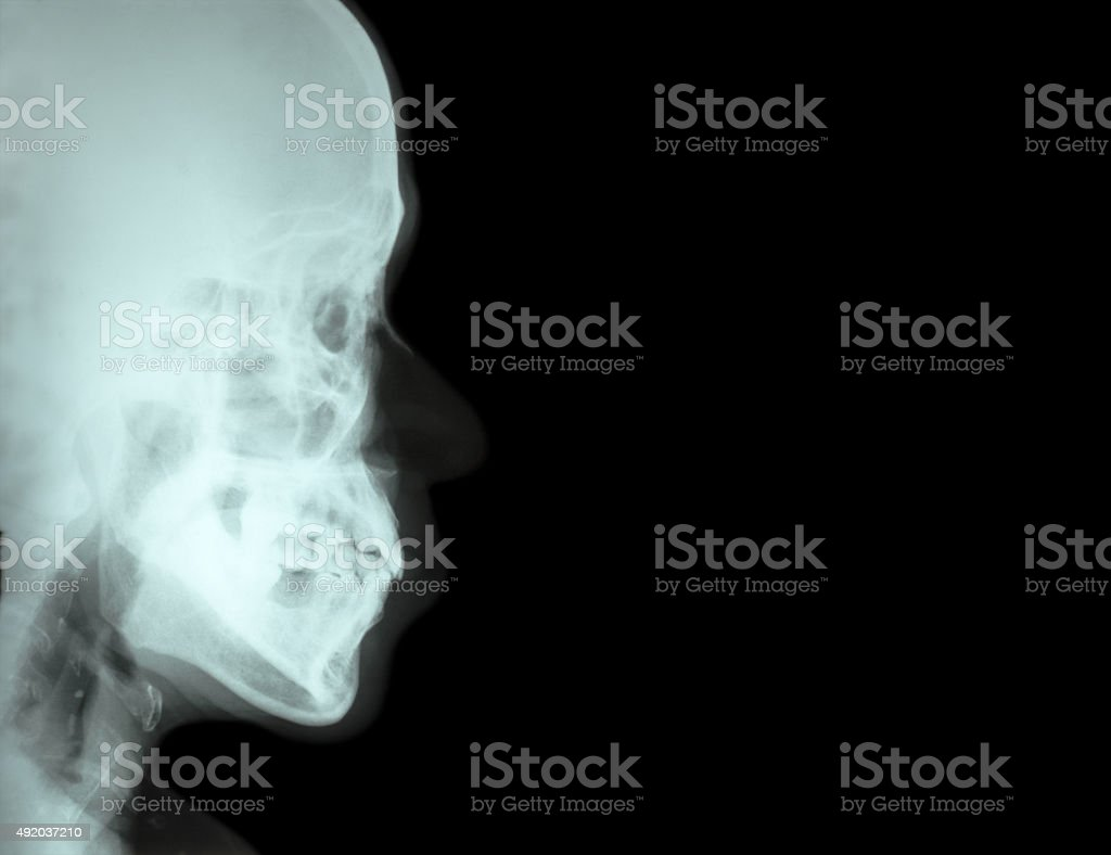 Film Xray Lateral Nasal Bone Stock Photo & More Pictures of 2015 ...