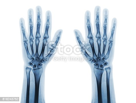 istock Film x-ray of both normal human hands . front view 816243752