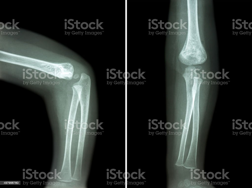 Film Xray Of Child S Elbow Stock Photo & More Pictures of 2015 | iStock