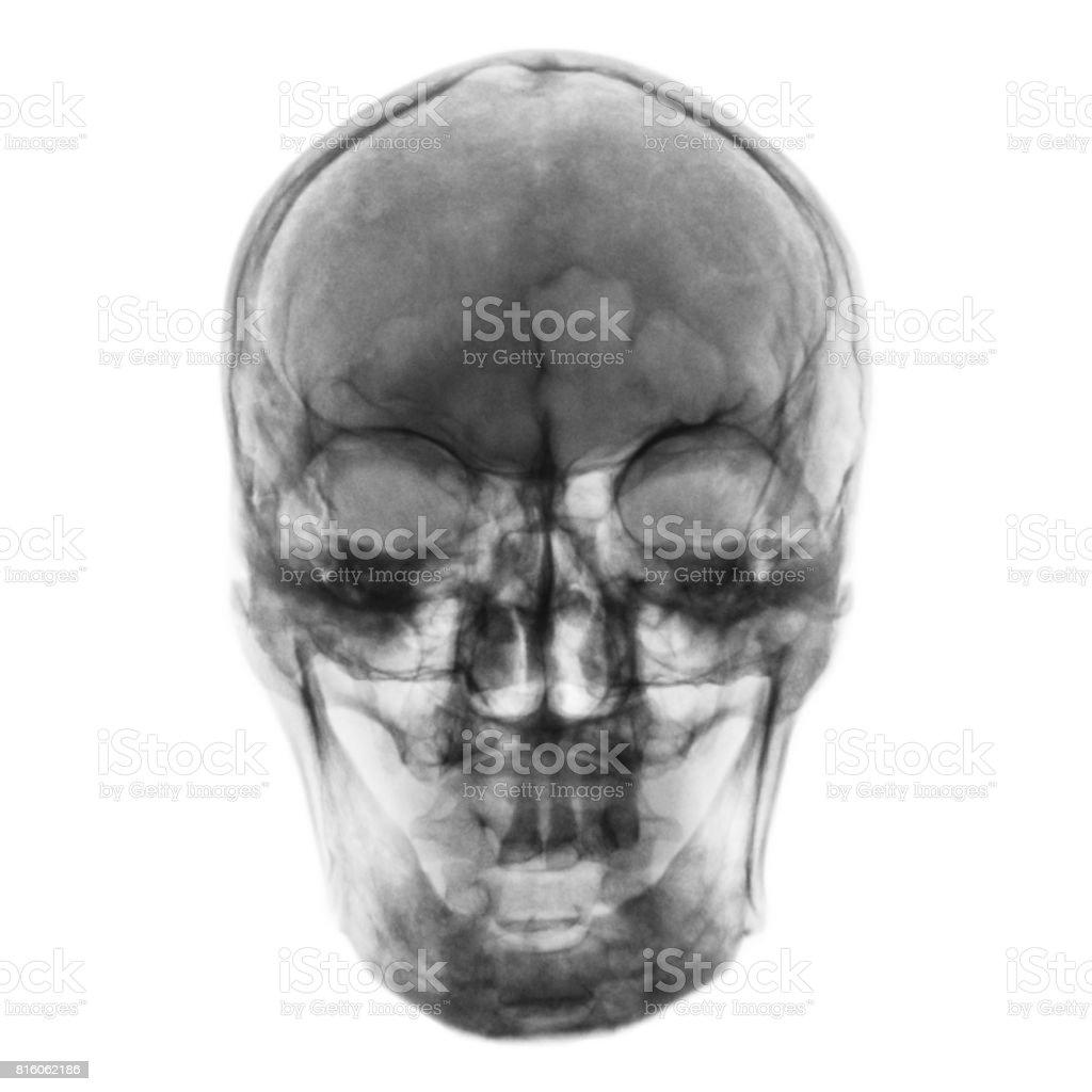Fotografía de Radiografía De Película De Cráneo Humano Normal Vista ...
