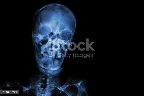 istock Film X-ray skull and blank area at right side 516487883