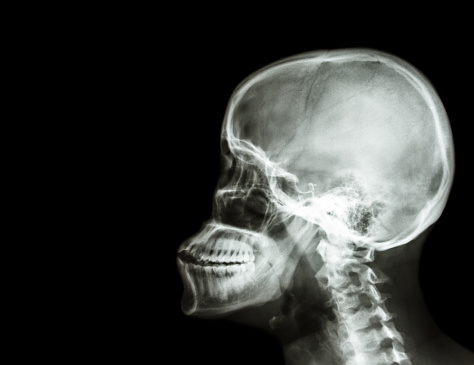 Film Xray Skull And Cervical Spine Lateral View Stock ... X Ray Skull 4 Views